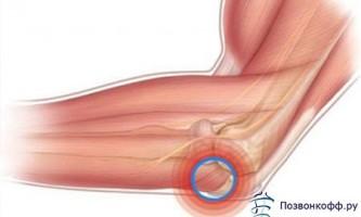 Зупиніть розвиток остеоартрозу 2 ступеня вже сьогодні!