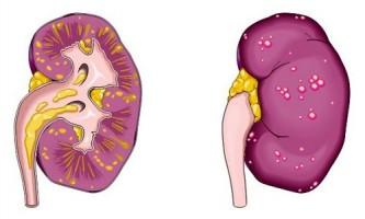 Чому виникає запалення нирок і як воно проявляється