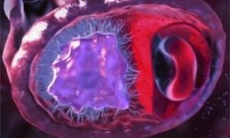 Нирки при цукровому діабеті, нефроангіопатія, пієлонефрит