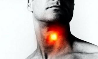 Причини білого нальоту в горлі і методи лікування за допомогою народної медицини