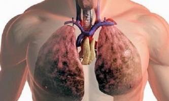 Причини появи кашлю з кров`ю і його лікування