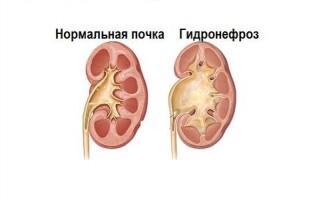 Причини виникнення і лікування гідронефрозу у дітей