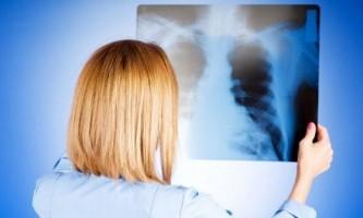 Особливості протікання та основні методи лікування крупозної пневмонії