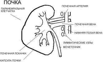 Проведення гемодіалізу нирок: дієти і ускладнення