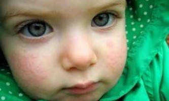 Дитину забиває кашель що робити