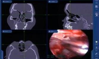 Рентген і комп`ютерна томографія кращі методи діагностики синуситу
