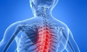 Симптоми і лікування шийно-грудного остеохондрозу
