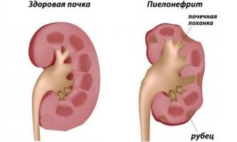 Симптоми і ознаки пієлонефриту у чоловіків