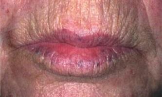 Синя родимка на губі