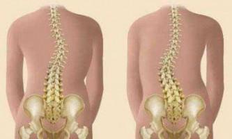 Сколіоз: симптоми і ознаки захворювання