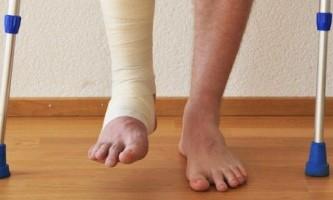 Зламаний голеностоп травма небезпечна