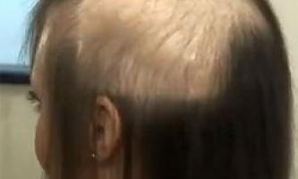 Стан волосся і хвороби