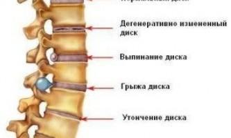 Який буває остеохондроз? Особливості та ступеня захворювання