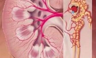 Стадії і форми хронічного гломерулонефриту
