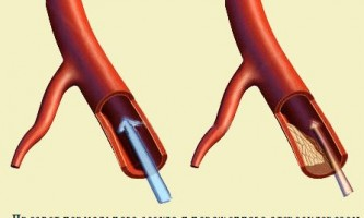 Статини при лікуванні атеросклерозу