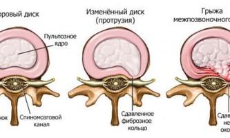 Ступеня поперекового остеохондрозу: як розвивається захворювання?