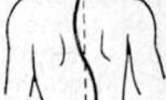 Ступені s-образного сколіозу і його лікування