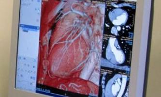 Томографія серця, фото