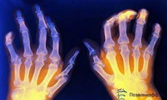 Вдаримо народним лікуванням по ревматоїдного артриту!