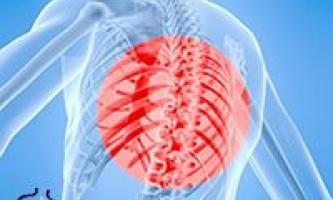 Дізнайтеся про симптоми грудного радикуліту і варіанти лікування!