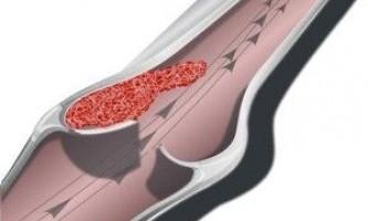 Венозний застій як наслідок шийного остеохондрозу