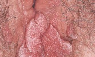 Види кондилом зовнішніх статевих органів