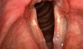 Запалення гортані, чому хрипкий голос