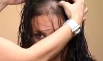 Тимчасове випадіння волосся у жінок