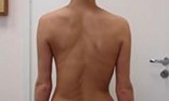 Все про сколіоз грудного відділу, симптоми і варіанти лікування. Коротко про вправи!