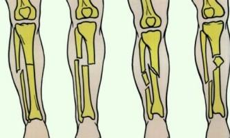 Ви зламали гомілкову кістку?